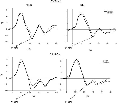 Electrophysiological Indices Of Discrimination Of Long Duration